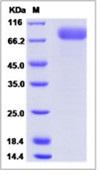 Ebola virus EBOV (subtype Bundibugyo, strain Uganda 2007) GlycoRecombinant Protein / GP-RBD (Receptor Binding Domain) Recombinant Protein (Fc Tag)