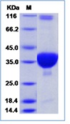 SARS coronavirus Plpro / papain-like protease