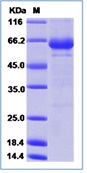 Coxsackievirus A16 (Cox A16) (strain G-10) VP1 Recombinant Protein (Fc Tag)