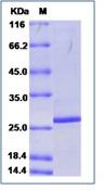 Porcine circovirus 2 (PCV2) Capsid Recombinant Protein (His Tag)
