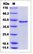 Hepatitis C virus (HCV-1a) NS3 protease / helicase immunodominant region Recombinant Protein (aa 1356-1459, GST Tag)