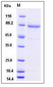 Recombinant human TLR2 protein with C-terminal His tag (extracellular domain Met 1-Arg 587)