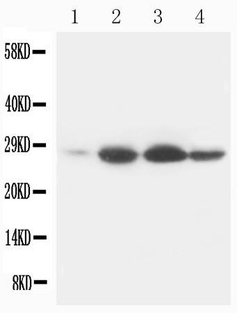 Monoclonal Antibody to Anti-Bcl-2 Antibody(Clone: Bcl-2-100)