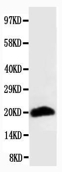 Monoclonal Antibody to Anti-Myosin(Skeletal, Fast) Antibody(Clone: MY-32)