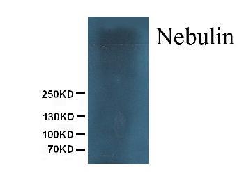 Monoclonal Antibody to Anti-Nebulin Antibody(Clone: NB2)