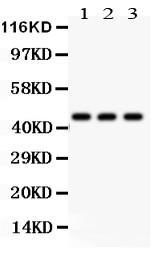 Monoclonal Antibody to Anti-Phosphoserine Antibody(Clone: PSR-45)(Discontinued)