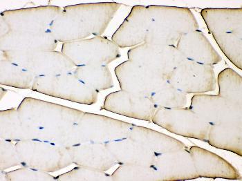Monoclonal Antibody to Anti-Troponin T Antibody(Clone: JLT-12)