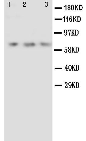 Polyclonal Antibody to Anti-Angiopoietin 2 Antibody