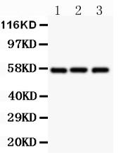 Polyclonal Antibody to Anti-Glut1 Antibody(Discontinued)