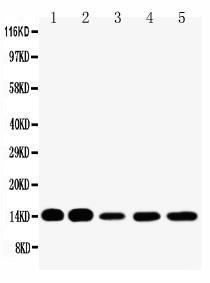 Polyclonal Antibody to Anti-FABP1 Antibody