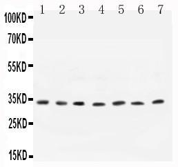 Polyclonal Antibody to Anti-Cyclin D1 Antibody