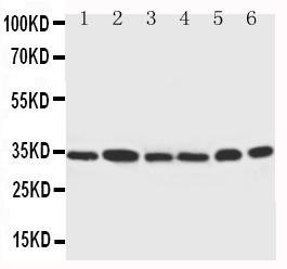 Polyclonal Antibody to Anti-Cdk4 Antibody