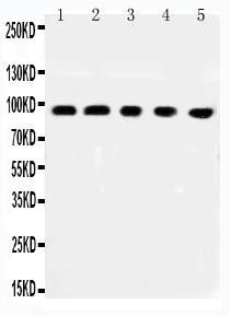 Polyclonal Antibody to Anti-MCC Antibody