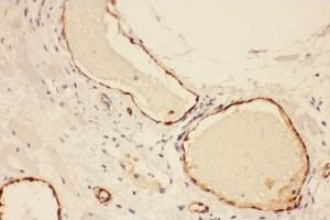 Polyclonal Antibody to VWF