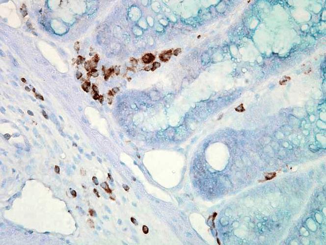 Anti-HSP70 Monoclonal Antibody (Clone : C92F3A-5) - Alkaline Phosphatase
