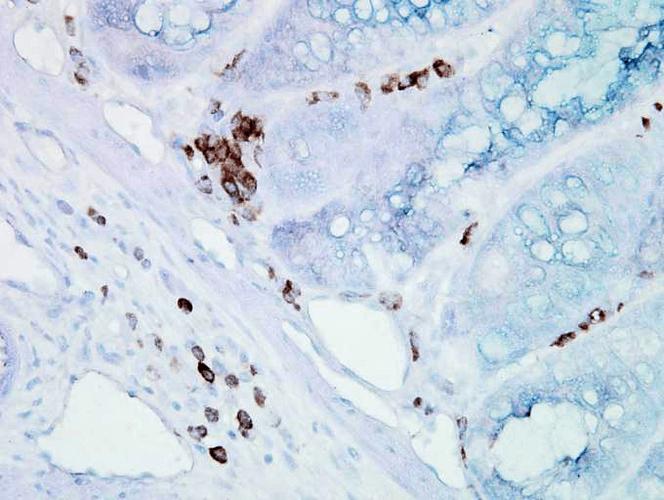 Anti-HSP70/HSC70 Monoclonal Antibody (Clone : BB70) - PE/ATTO 594