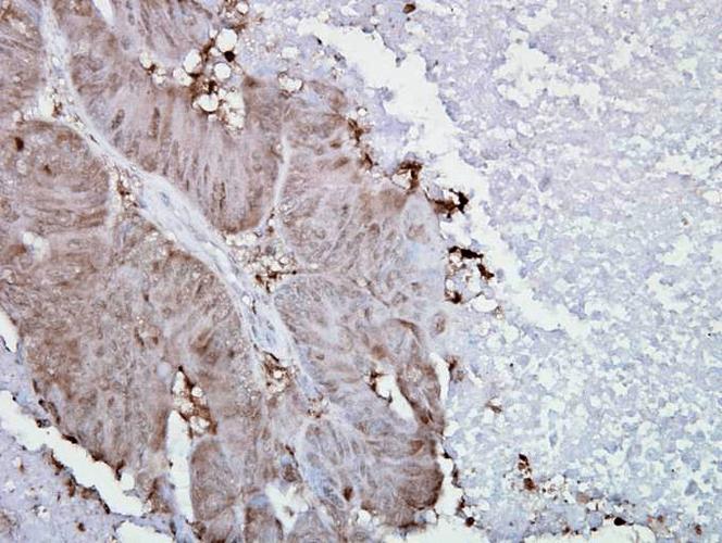 Anti-HSP90 alpha Monoclonal Antibody (Clone : Hyb-K41009) - Alkaline Phosphatase