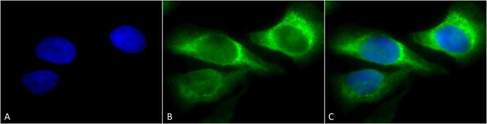 Anti-HSP47 Monoclonal Antibody (Clone : 1C4-1A6) - Alkaline Phosphatase