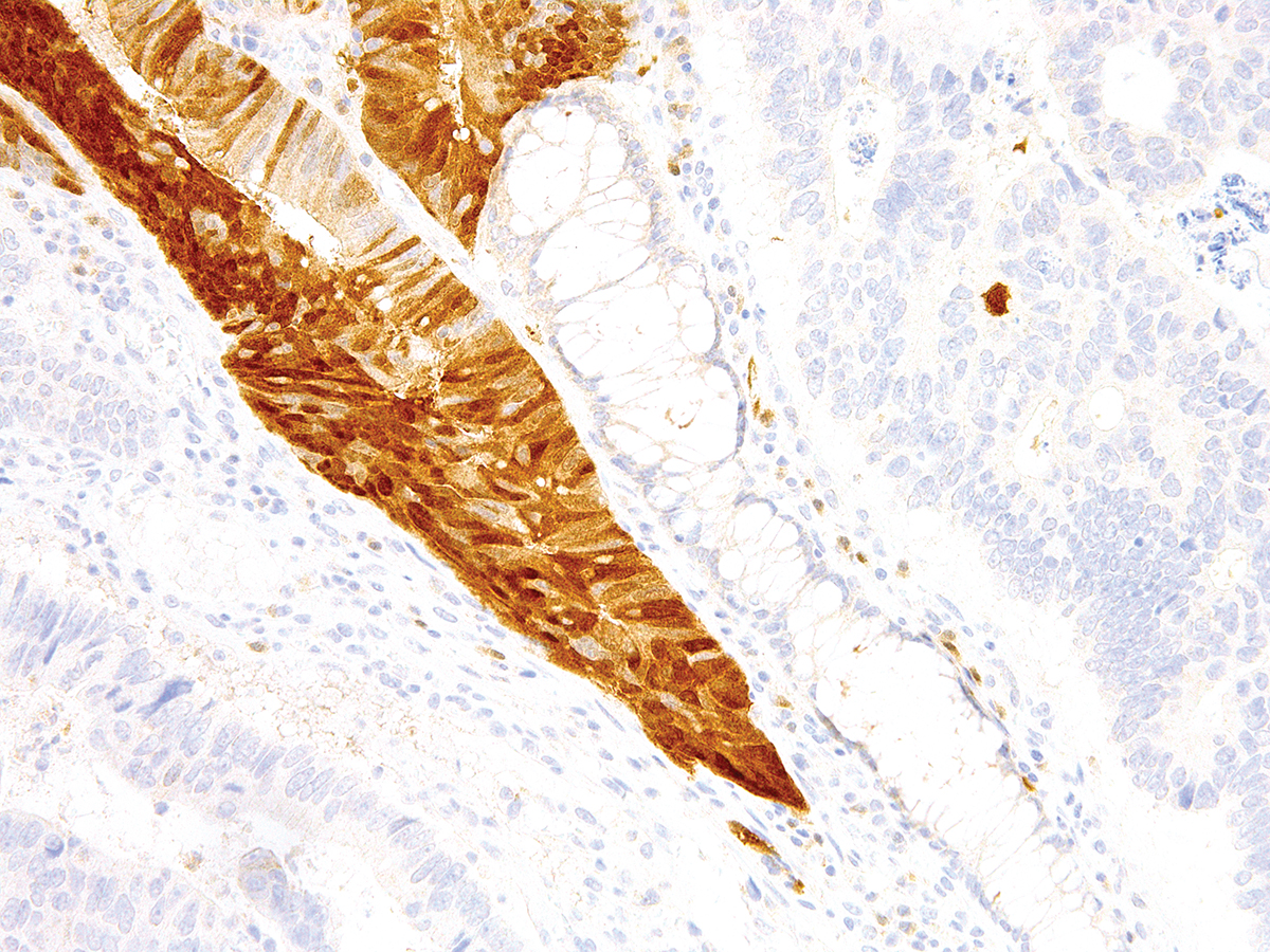Anti-Arginase-1 Monoclonal Antibody (Clone:IHC400)-Ready to Use