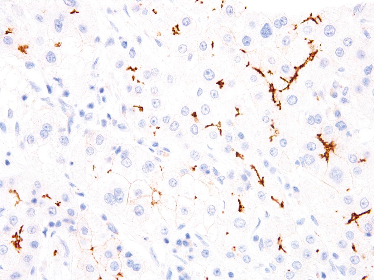 Anti-BSEP Monoclonal Antibody (Clone:IHC518)
