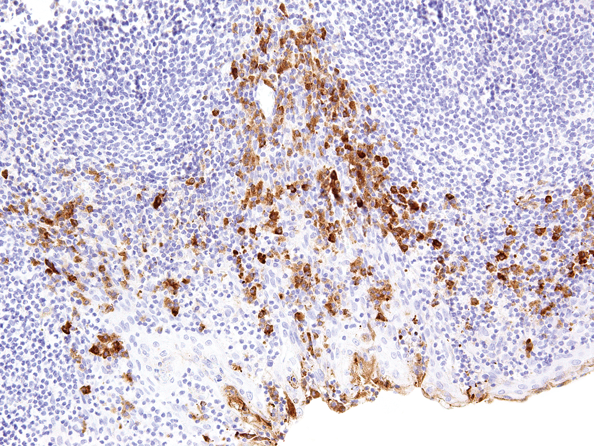 Anti-CTLA-4 Monoclonal Antibody (Clone:IHC004)-Ready to Use