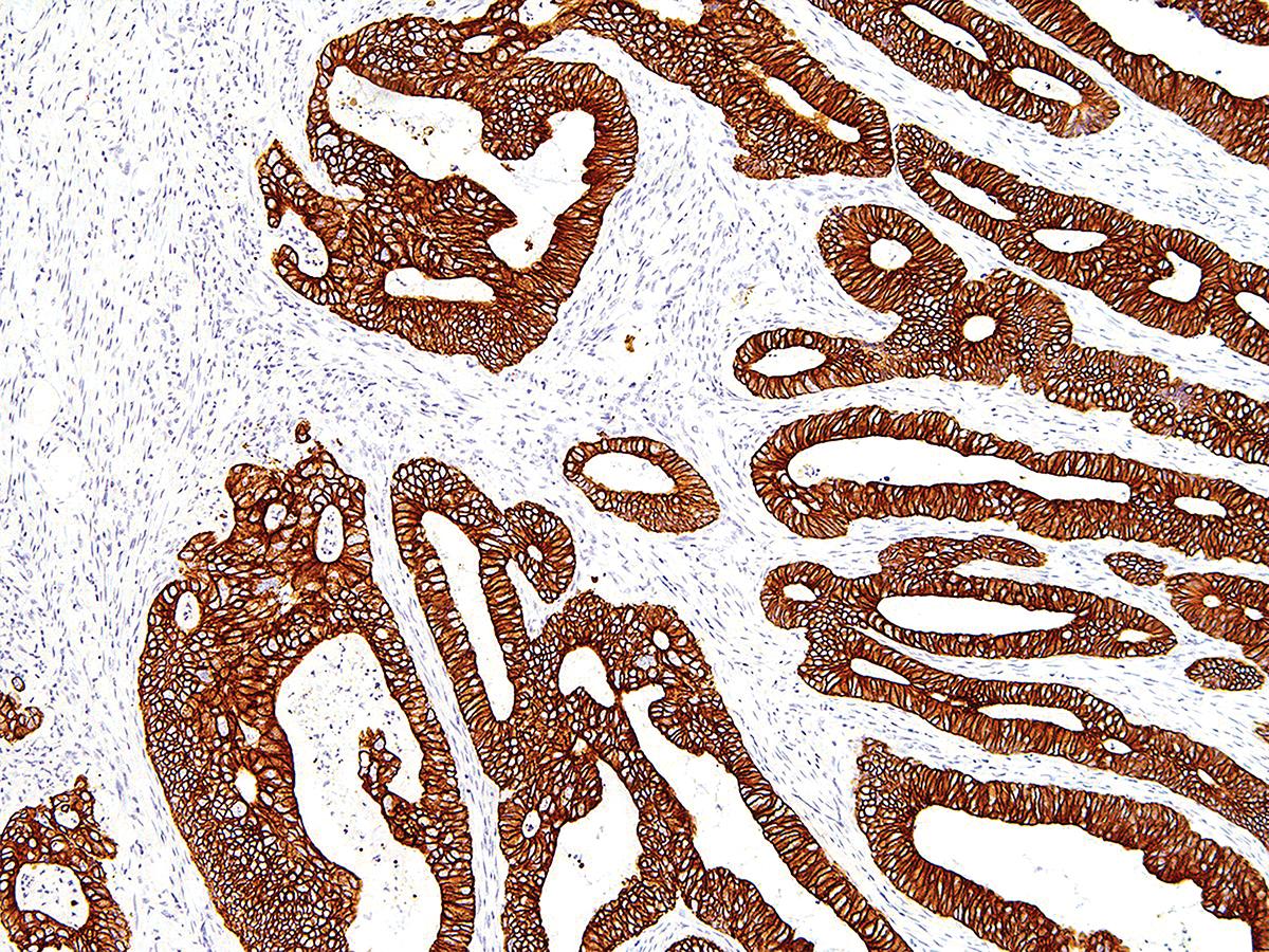 Anti-Cytokeratin 19 Monoclonal Antibody (Clone:IHC019)