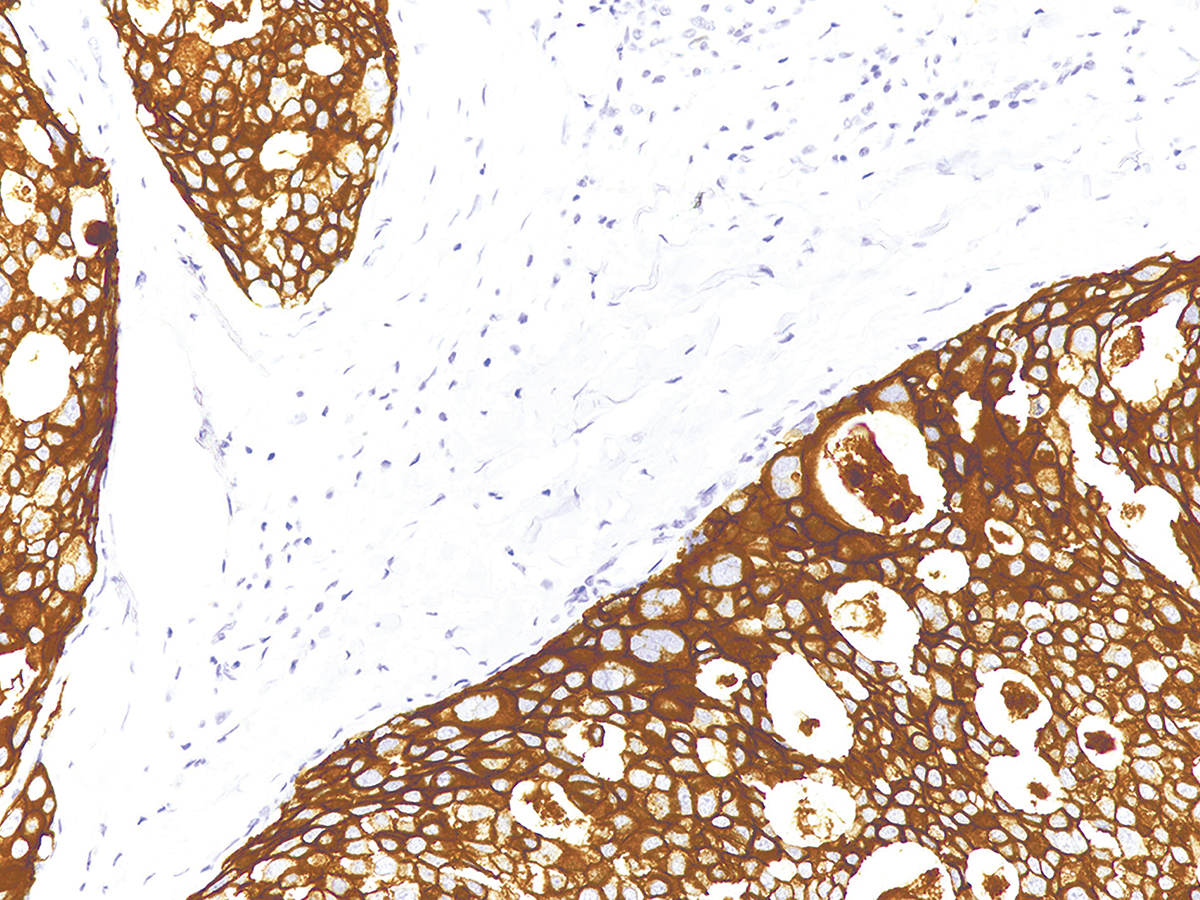 Anti-Her2/Neu Monoclonal Antibody (Clone:IHC002)(Discontinued)