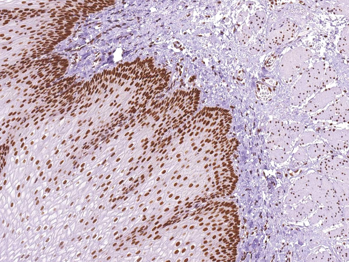 Anti-MLH1 Monoclonal Antibody (Clone:IHC409)