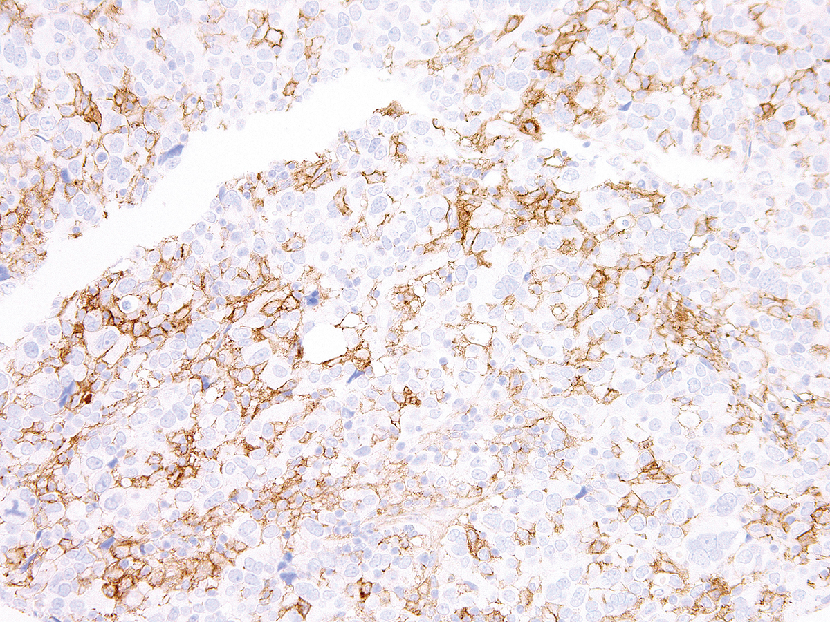 Anti-PD-L1 Rabbit Monoclonal Antibody (Clone:IHC411)-Ready to Use