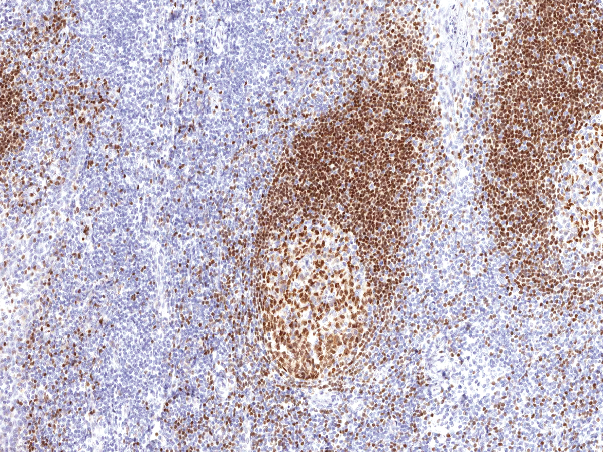 Anti-PAX-5 Monoclonal Antibody (Clone:IHC005)-Ready to Use
