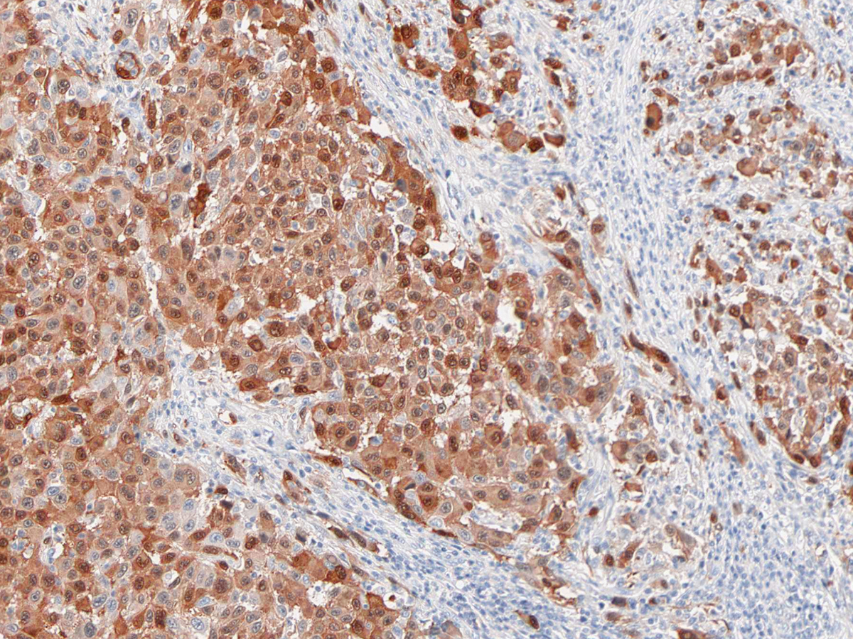 Anti-s-100 Monoclonal Antibody (Clone:IHC100)-Ready to Use