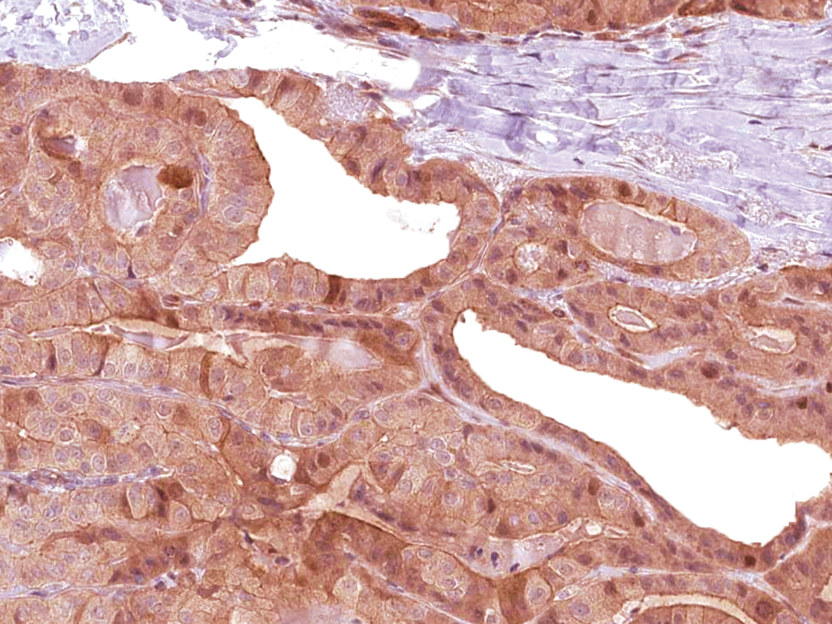 Anti-BG8 LewisY Monoclonal Antibody (Clone:IHC517)