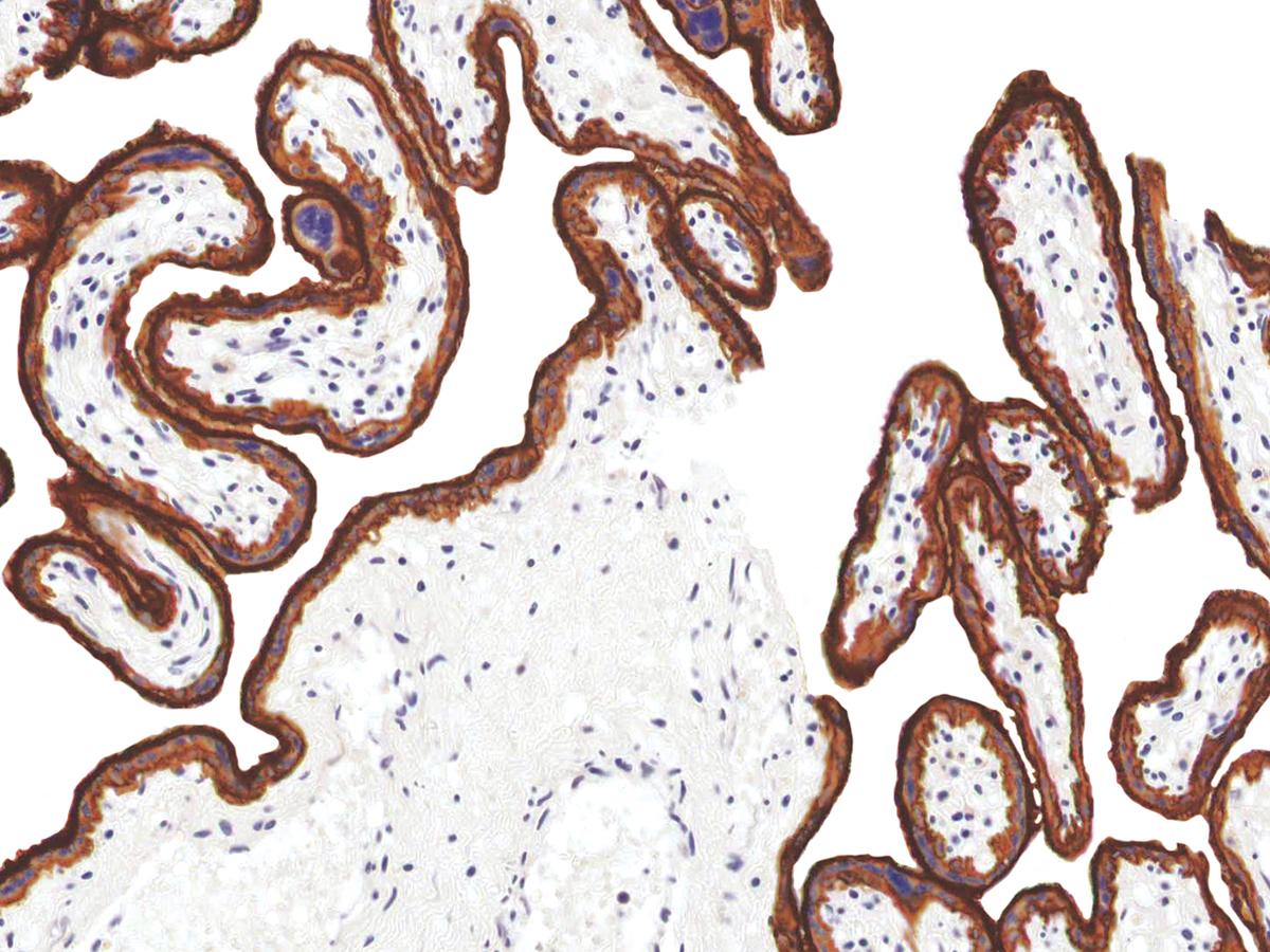 Anti-EGFR Monoclonal Antibody (Clone:IHC565)-Ready to Use