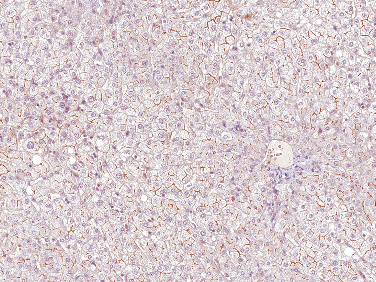Anti-MDR3 Monoclonal Antibody (Clone:IHC621)-Ready to Use