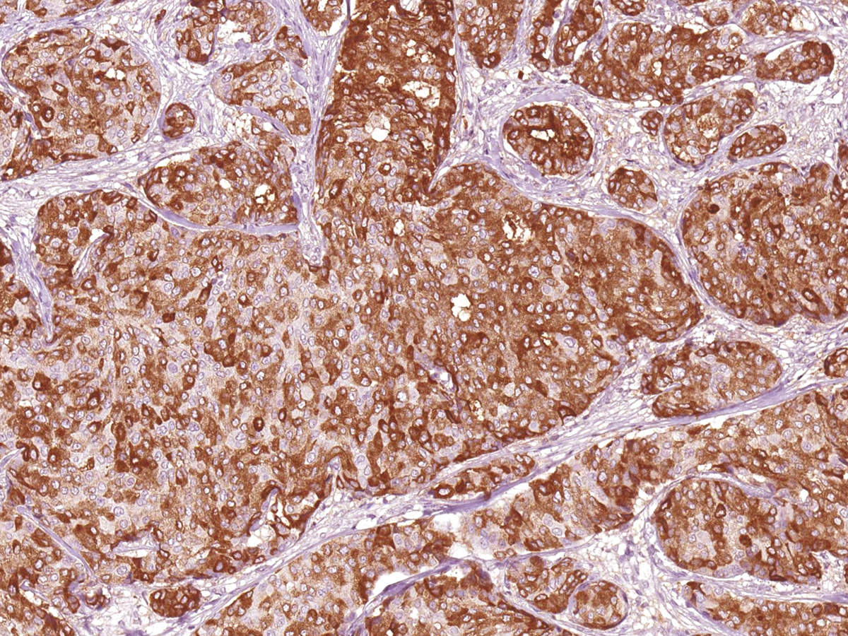 Anti-MUC1 Monoclonal Antibody (Clone:IHC623)-Ready to Use
