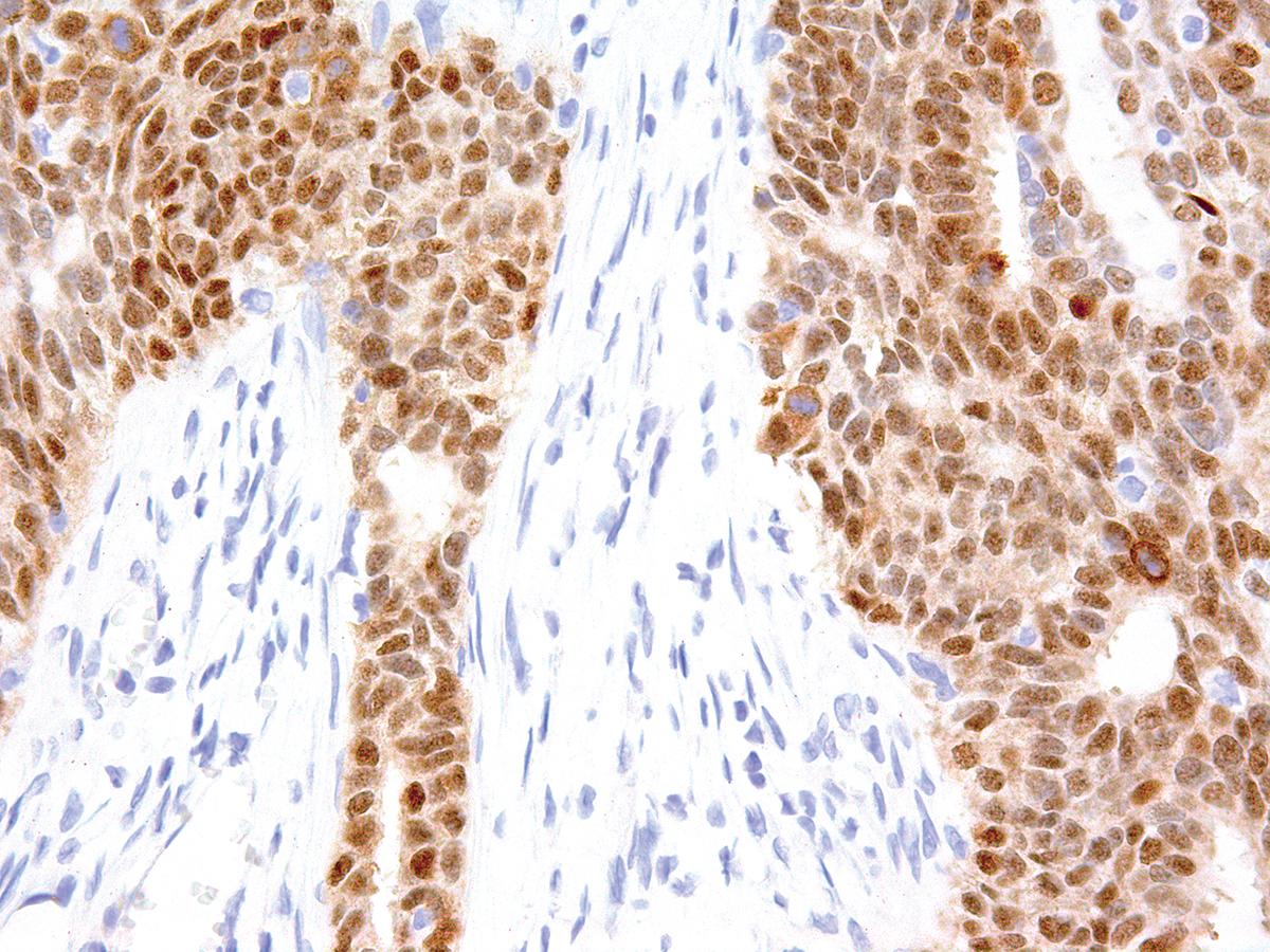 Anti-SOX-2 Monoclonal Antibody (Clone:IHC665)-Ready to Use