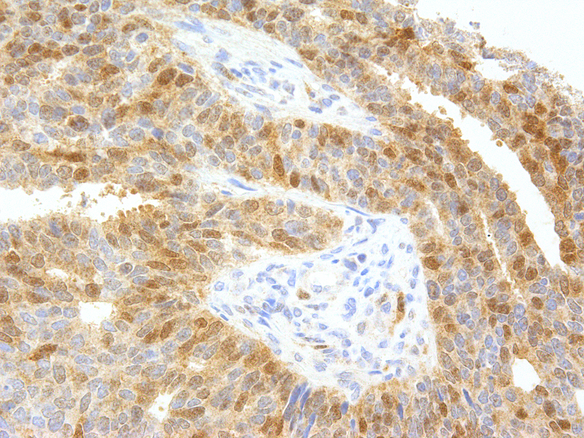Anti-Thymidylate Synthase Monoclonal Antibody (Clone:IHC697)-Ready to Use