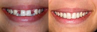 Affordable dental near me