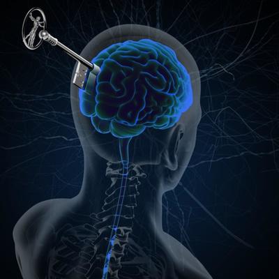 Brain Health VIP