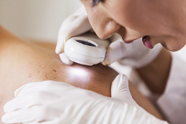 Dermatologist examining patient skin