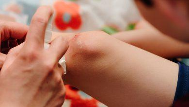 Photo of Con VIBAC30®, limpia tus heridas sin dolor