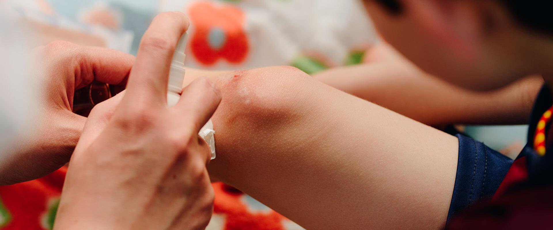 Persona curando heridas en la rodilla de un niño con Vibac30.