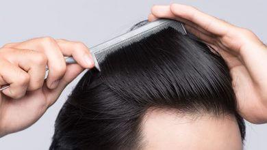 Photo of Descubre cómo evitar la caída del cabello con Genex