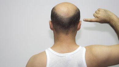 Photo of Descubre cómo evitar la calvicie con Xcellerate 35