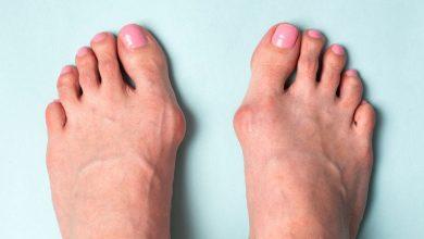 Photo of ¿Dolor en el dedo gordo del pie? Puede ser un juanete
