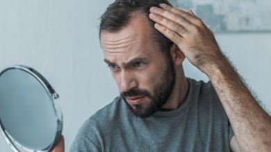 Photo of La alopecia y calvicie son problemas capilares con solución