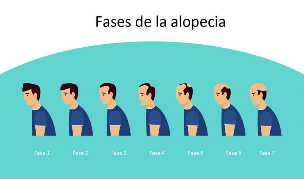Fases de la alopecia y calvicie