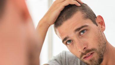 Photo of 3 técnicas para recuperar el cabello perdido
