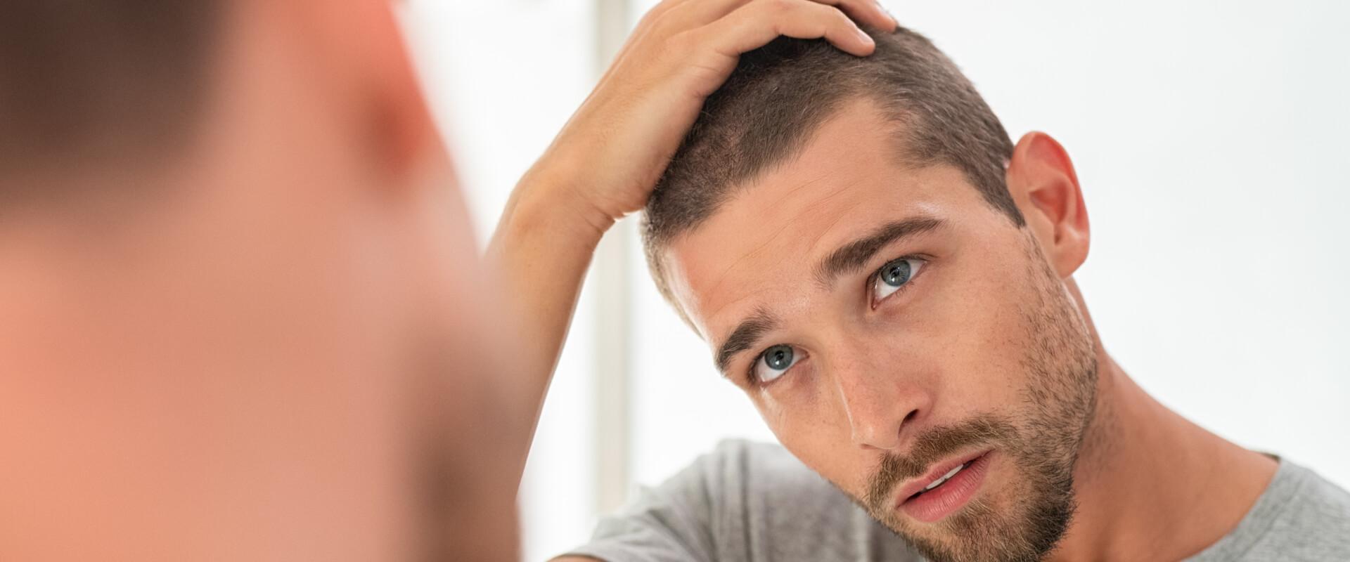 Hombre con alopecia viéndose en el espejo