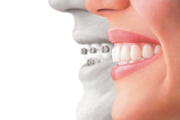 Save $500 on Invisalign or Braces